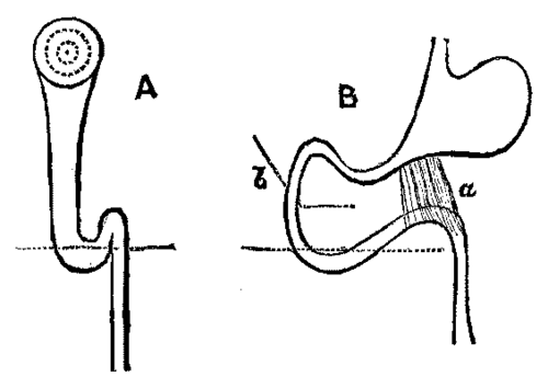 the duodenum  a siphon trap