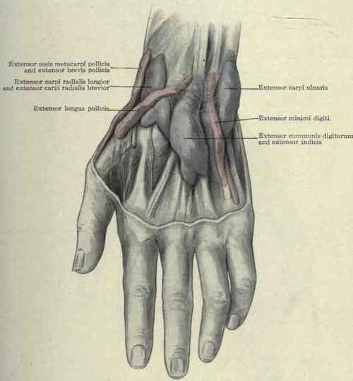 The sheaths of the extensor tendons on the back of the wrist distended with