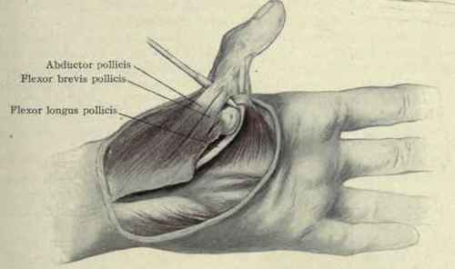 Dislocations Of The Hand