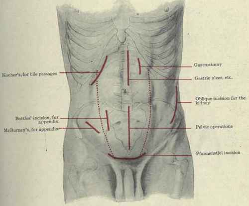 McBurney's Incision http://chestofbooks.com/health/anatomy/Human-Body-Construction/Abdominal-Incisions.html