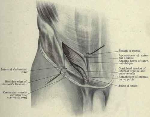 Herniae. Part 3 Female Inguinal Hernia Anatomy