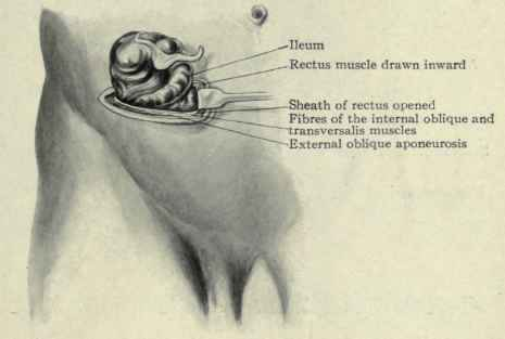 McBurney's Incision http://chestofbooks.com/health/anatomy/Human-Body-Construction/CaeCum-And-Appendix-Part-3.html