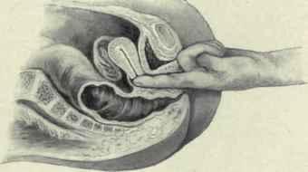 Prolapsed+uterus+pictures