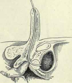 Urethra Sounding Prostate http://chestofbooks.com/health/anatomy/Human-Body-Construction/The-Urethra-Continued.html