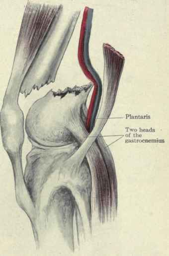 Supracondylar and Condylar fracture of the femur - Medical Study ...