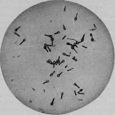 Who Discovered The Cause Of Tetanus Tetanus Skin Test