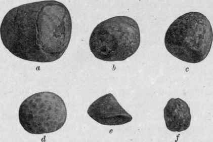 how to remove gallbladder stones medical terminology