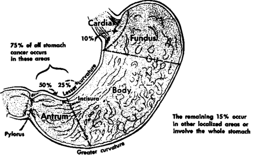 gastric ulcer vs  gastric cancer