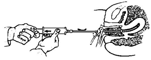 Endometrial Biopsy Syringe Aspiration Biopsy Syringe