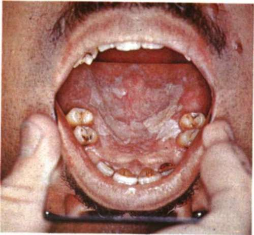 Precancerous conditions for Floor of mouth cancer
